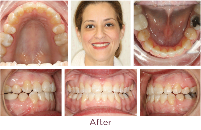 Class 3 orthodontic problem after