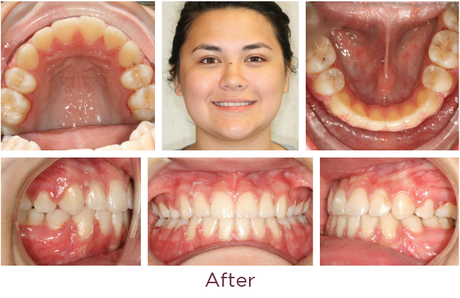 Extraction orthodontic problem after