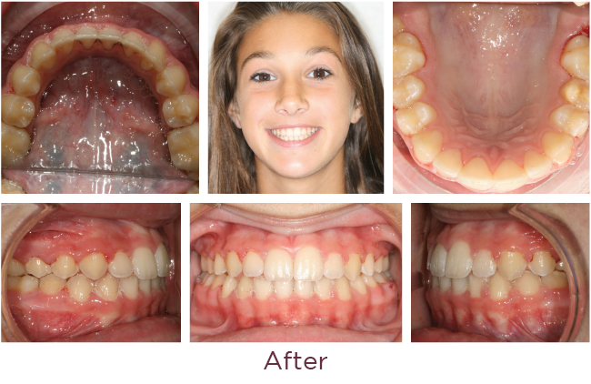 Class 2 orthodontic problem after