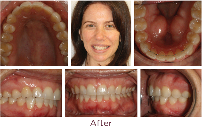 Incognito Lite braces treatment after