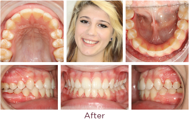 Posterior openbite orthodontic problem after