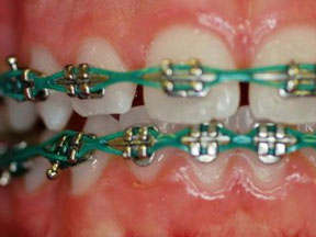 Orthodontic Appliances - Chain
