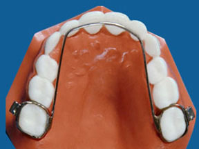 Orthodontic Appliances - Lingual Arch