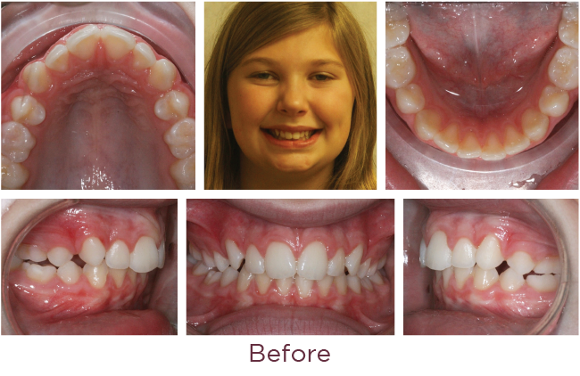 Class 2 orthodontic problem before