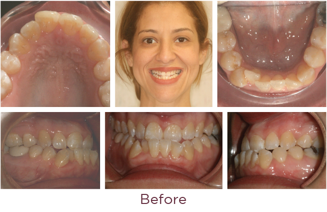 Class 3 orthodontic problem before