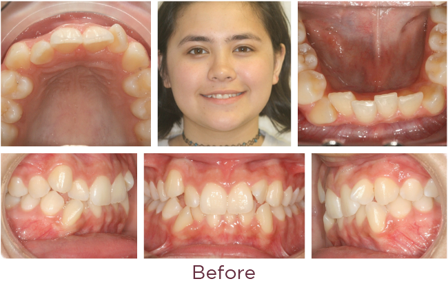Extraction orthodontic problem before