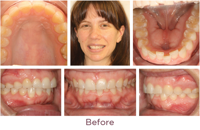 Incognito Lite braces treatment before