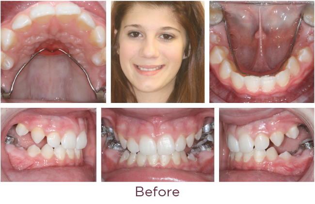 Posterior openbite orthodontic problem before
