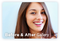 Before an After Gallery